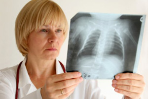 Пленка рентгеновская в стоматологии