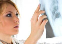 38 Высушивание промытых рентгеновских плёнок